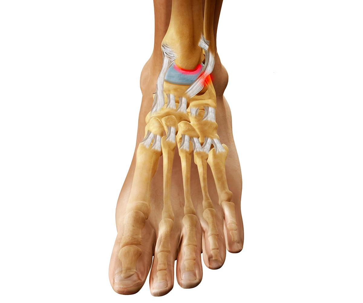 Артроз голеностопного сустава чем опасен ушиб сустава руками