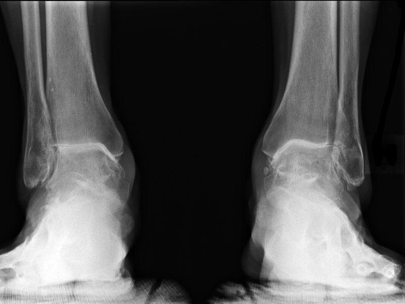 Лечение артроза голеностопного сустава - что такое и чем опасен ...