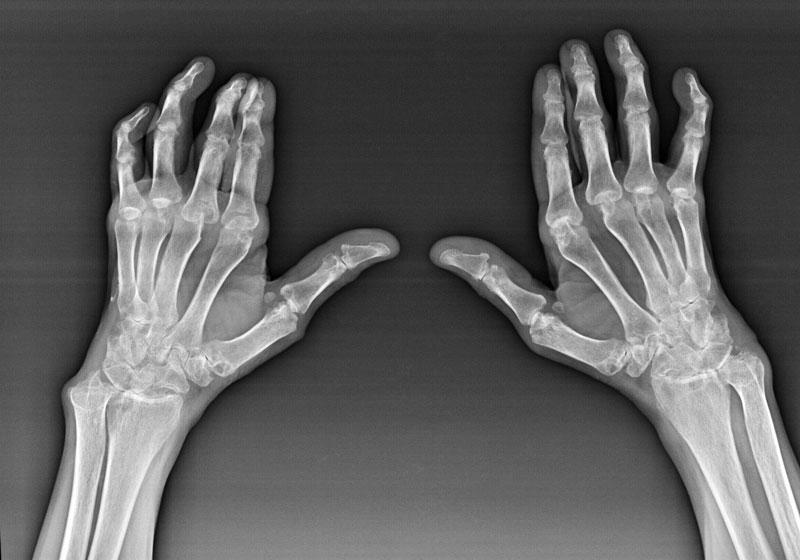 Лечение артроза мелких суставов кистей рук и запястья кисти