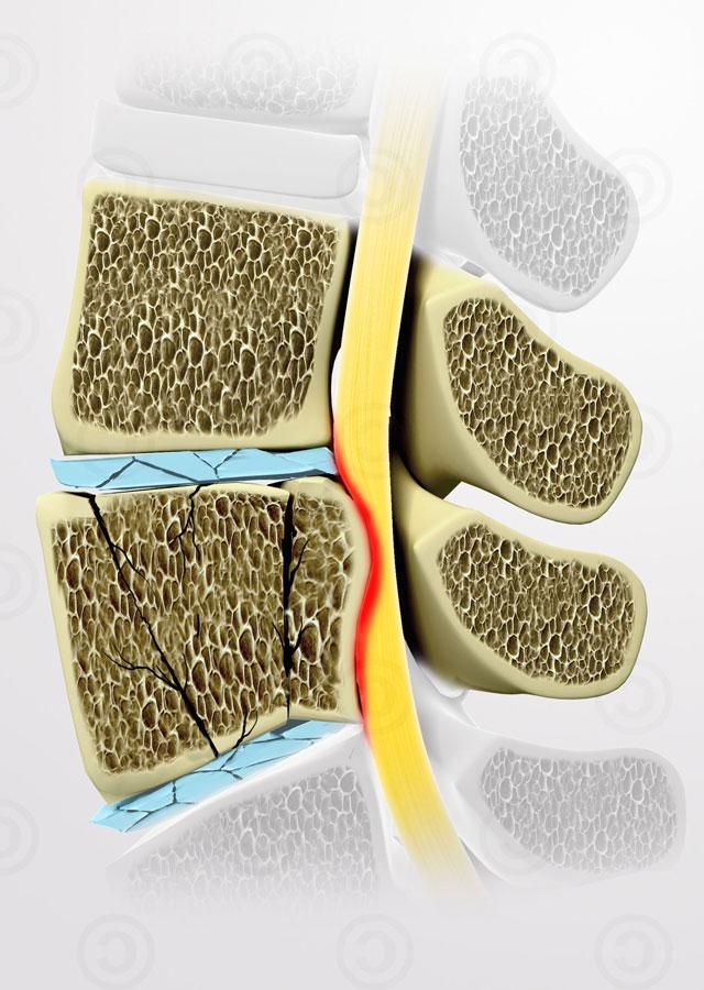 Как восстановить хрящевую ткань позвоночника