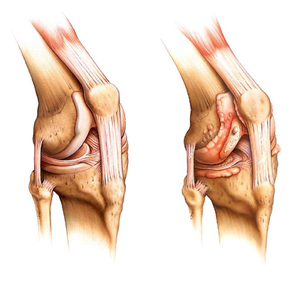 Гнойный остеоартрит коленного сустава болит нога над коленом спереди