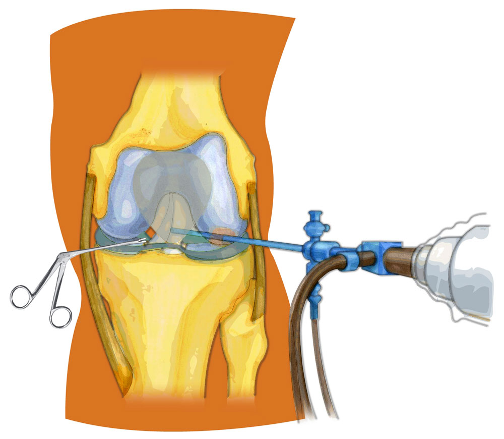 Гнойный артрит коленного сустава протокол операции движение суставов стопы