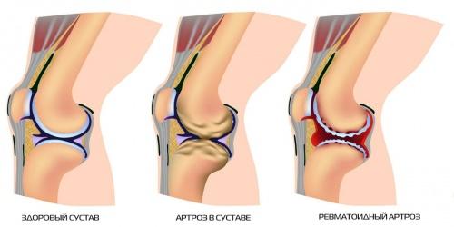 как выглядит здоровый и поврежденный артрозом локтевой сустав