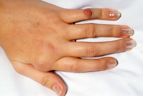 пальцы деформированные артрозом