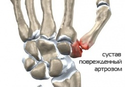 так выглядит сустав поврежденный артрозом