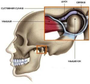 1427020075_anatomiya-artroza-chelyusti