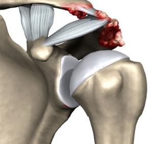 Артрит артроз плечевого сустава