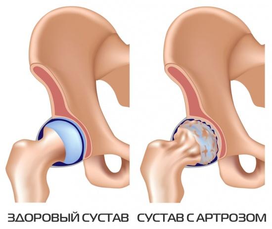 как выглядит тазобедренный сустав пораженный артрозом