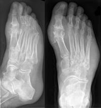 рентгеновский снимок поврежденного сустава пальца