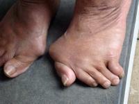 последствия деформации пальцев стопы из-за артроза