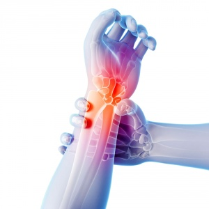 Артрит кисти руки лечение