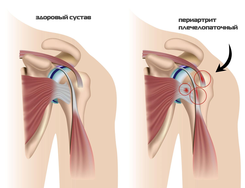 плечелопаточный артрит лечение