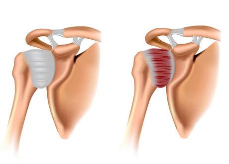 Воспаление лопаточно-плечевой сустав локтевые суставы болят