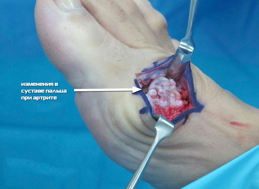 артрит суставов пальцев ног лечение