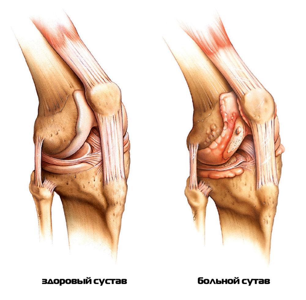 Ревмотоидный артроз коленного сустава тренажеры для разработки коленного сустава