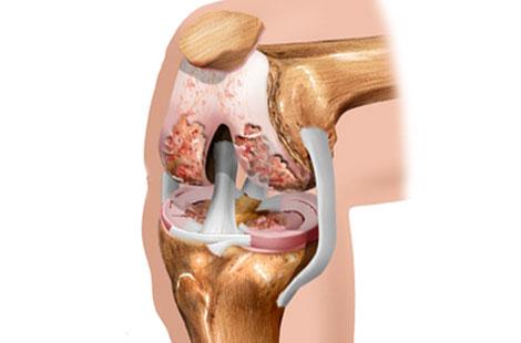 Лечение реактивного артрита коленного сустава