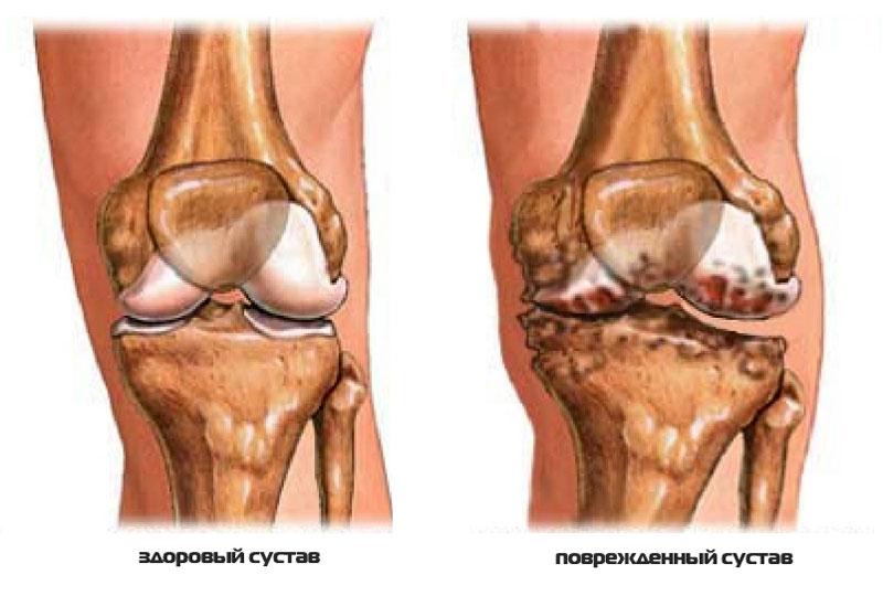 Лечение реактивного артрита коленного сустава, как лечится ...