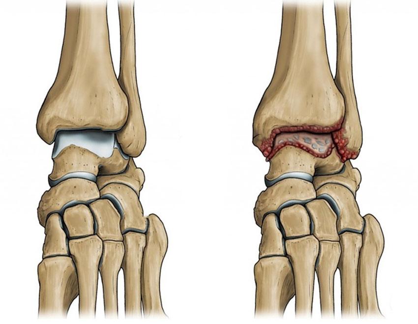 медикаментозное лечение артрита стопы