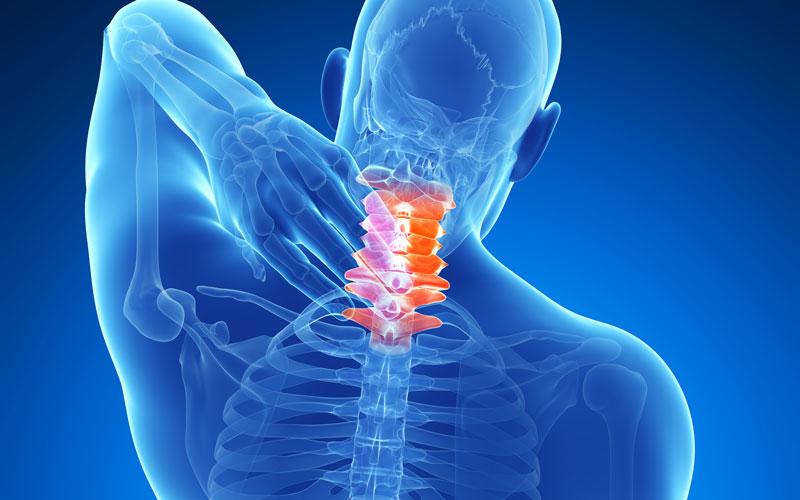 шейный артрит лечение