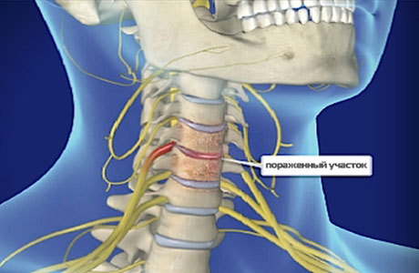 Неврологическая болезнь и артериальная гипертензия