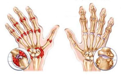 Лечение артрита суставов кисти руки и лучезапястного сустава