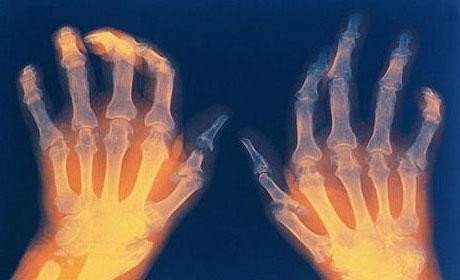 Воспаленный сустав на кисти остеоартрита в тазобедренном суставе