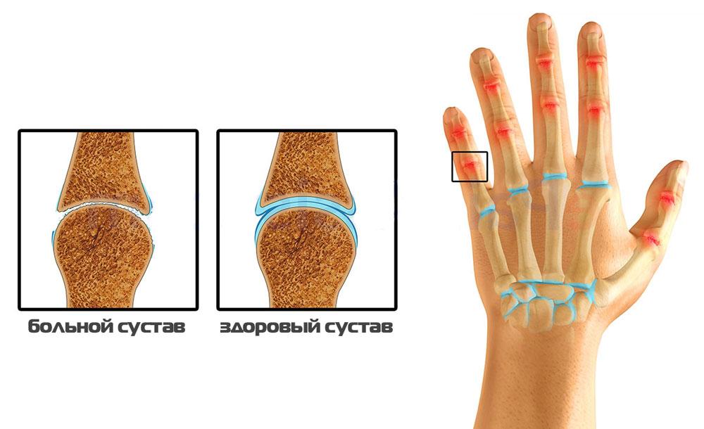 Подагрический артрозо-артрит суставов левого запястья внутрисуставное введение кеналога техника