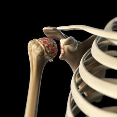 Боль в верхней части спины по бокам