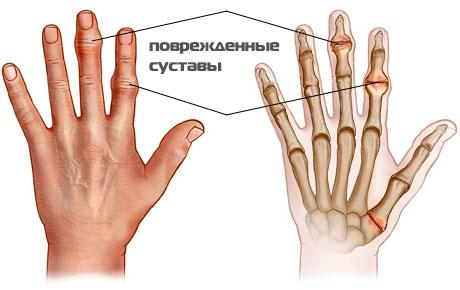 Лечение артрита суставов пальцев рук, как вылечить пальцы при ...