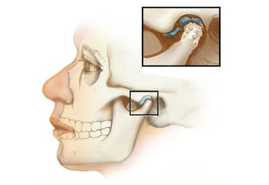 Воспаление челюстного сустава сильные боли последствие гимнастика бубновского суставная видео онлайнi