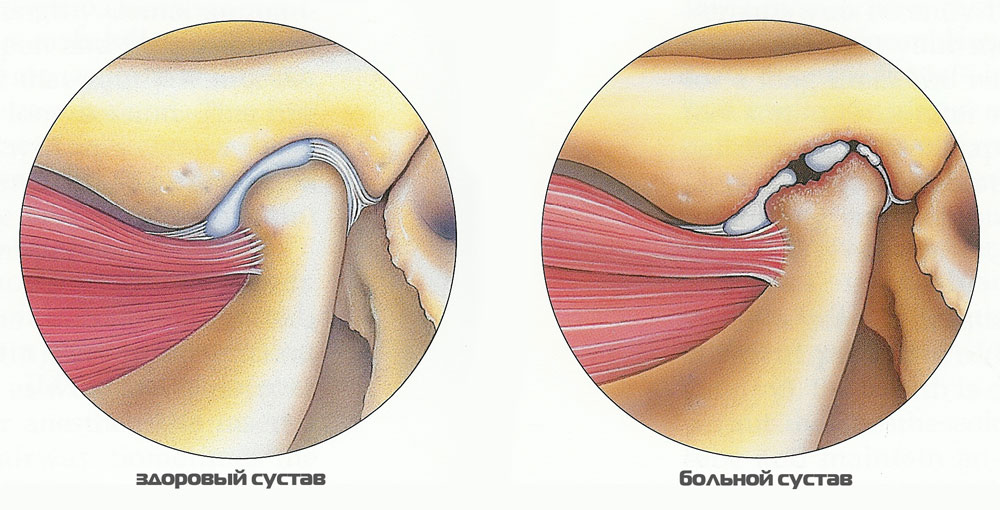 лечение артрита челюстно лицевого сустава