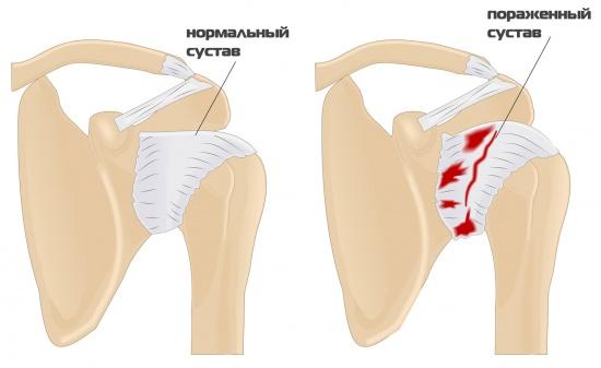здоровый и больной плечевой сустав при периартрите
