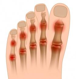 суставы подверженные артриту