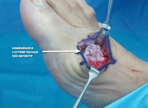 артрит пальцев ног что делать