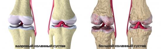 внешний вид костных и хрящевых тканей на здоровом и поврежденном суставе