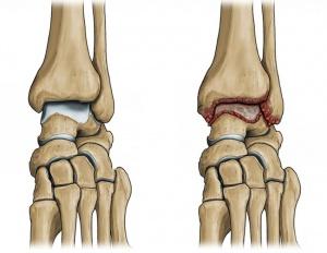 нормальный и воспаленный из-за артрита сустав в стопе