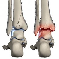 развитие артрита после травмы