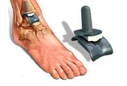 эндопротез сустава стопы