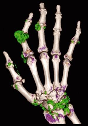 вид суставов кисти на томографе