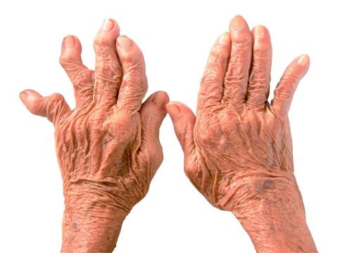 последствия артрита пальцев