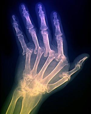 деформация пальцев на рентгеновском снимке