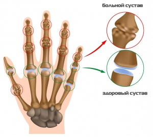 так выглядит нормальный и деформированный артритом сустав пальца