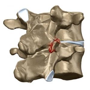 Боль в спине ниже лопаток выше пояснице
