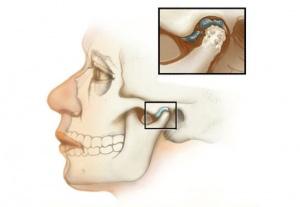 Артрит челюстного сустава симптомы