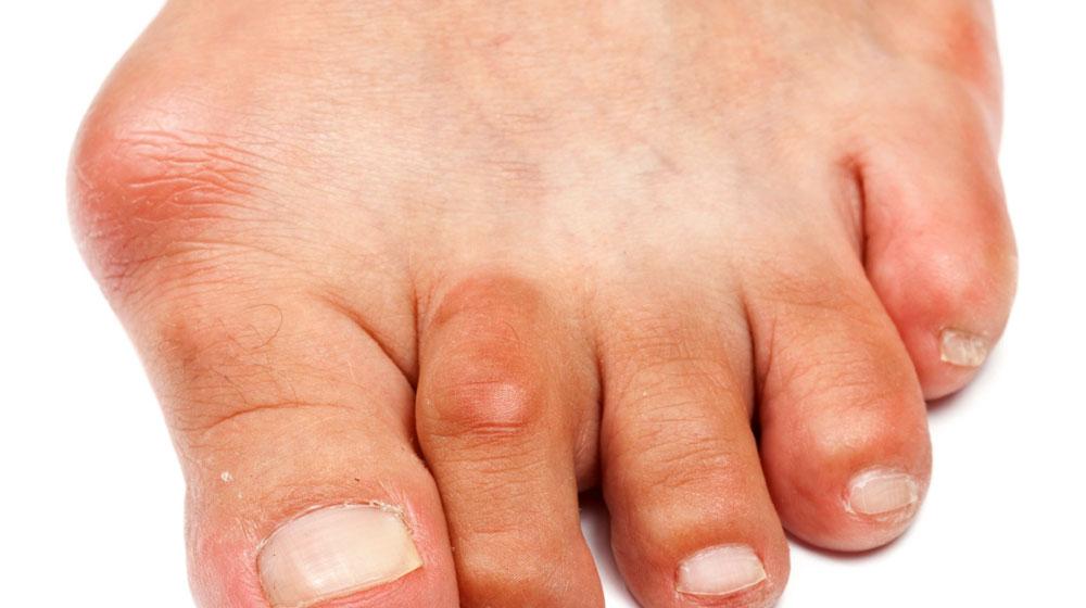 Как лечить сустав пальца на ноге в домашних условиях
