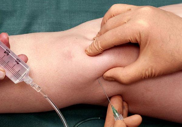 Коленого сустава жидкость томография коленного сустава стоимость