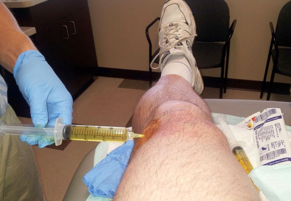 Жидкость в коленном суставе как называется болезнь травматического артрита височно-нижнечелюстного сустава