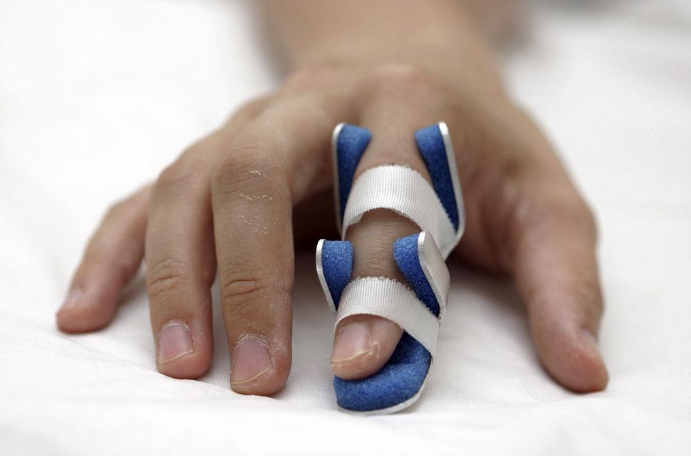 Что делать при вывихе сустава пальца постоянная боль в локтевом суставе