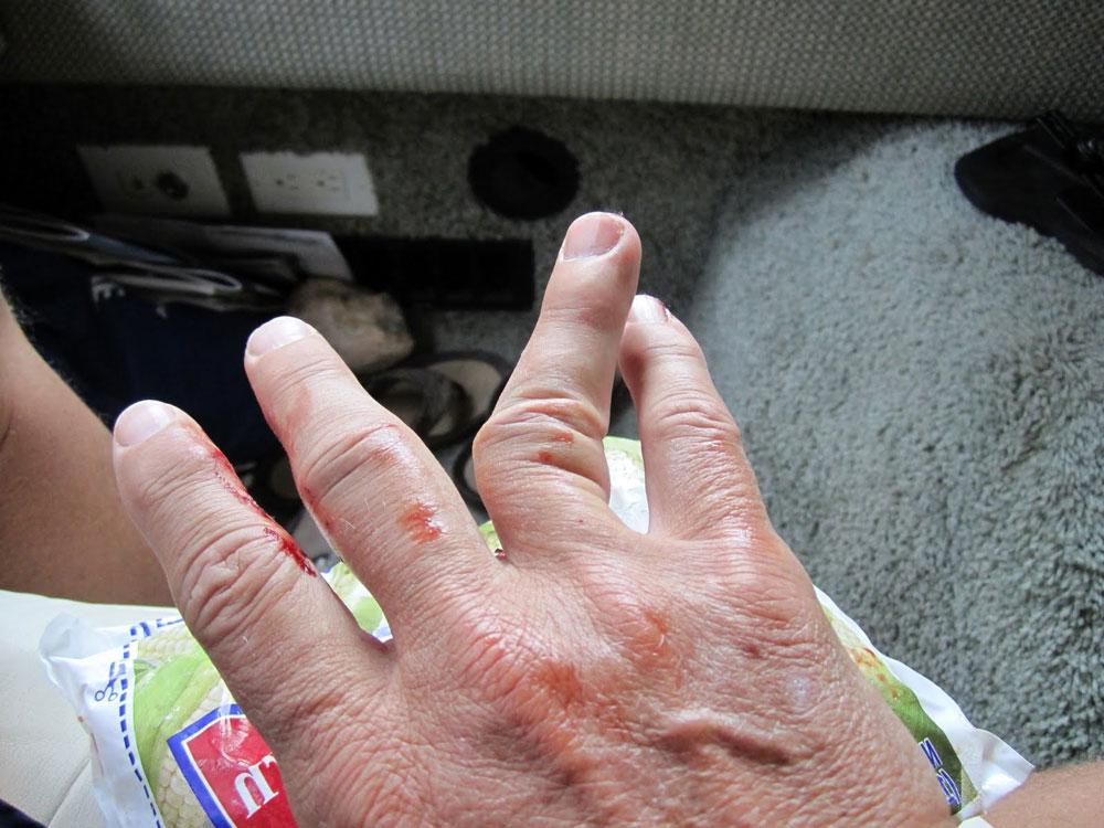 Когда сломал палец на руке что делать в домашних условиях 72
