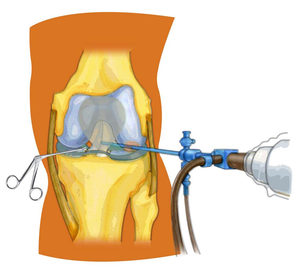 Крестообразная связка коленного сустава мазь